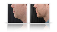Buccal fat reduction, VASER liposelection, Anterior Neck lift.