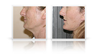 Facelift, neck lift, endoscopic browlift.