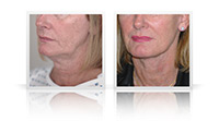 Facelift with neck lift and small fat transfer to midface.