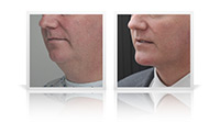 Anterior necklift and chin implant