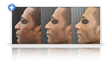 Primary ethnic rhinoplasty